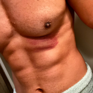 WWE Spoilers - Mustafa Ali share a photo of his injury after WWE RAW - Sports Info Now